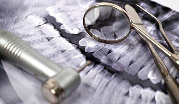 dental medicine Курсы в Израиле с трудоустройством, ульпан по изучению иврита